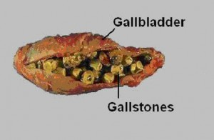 Gallstones-300x196