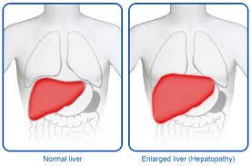 enlarge_liver
