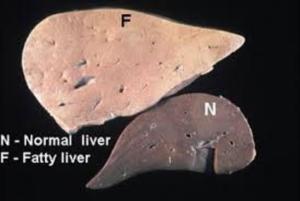 fatty_liver200