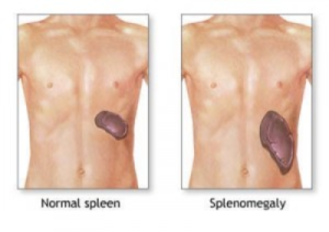 spleen_enlargement_01