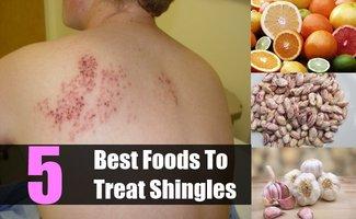 Diet for Shingles | Diet